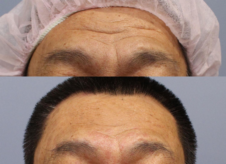 自體脂肪豐額,在淺層的填充,也可以改善部分皺紋的問題