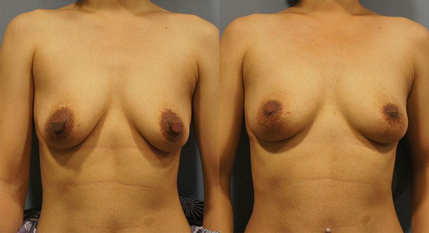 客人接受縮乳頭+縮乳暈手術
