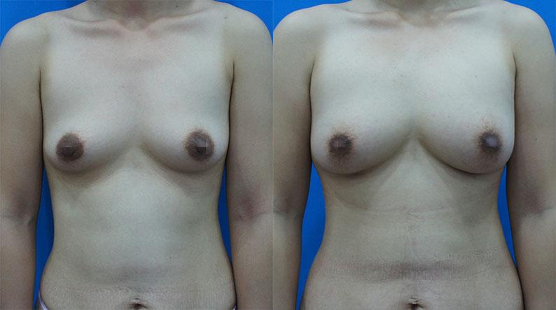 客人同時接受抽脂豐胸和縮乳暈手術