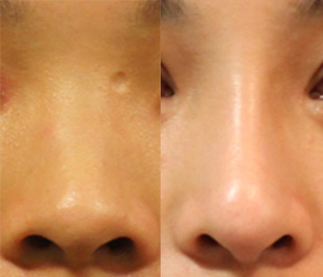 使用卡麥拉鼻模,一般做出來的挺度比較明顯,有些人會覺得不夠自然,而且從鼻梁到鼻頭寬度的曲線不夠勻稱