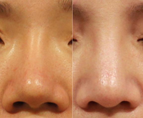 左邊:矽膠隆鼻術後出現攣縮歪斜,鼻梁過細的問題。右邊:採用全gortex鼻模及結構式隆鼻重修。