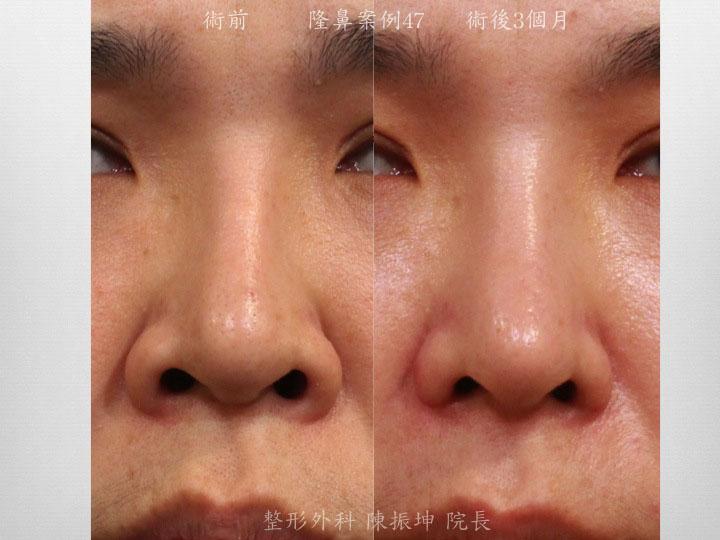 客人在傳統隆鼻後,為了解決攣縮及歪斜問題,改用全自然隆鼻來達到穩定效果