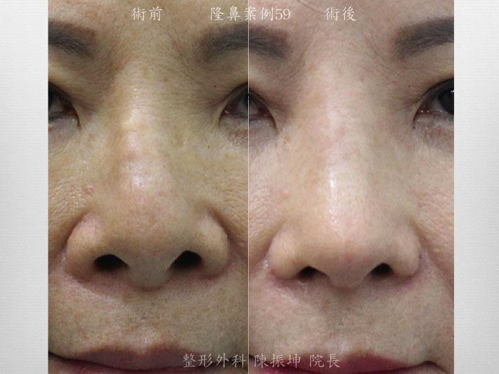 客人矽膠隆鼻術後,鈣化偏斜,改用全自然隆鼻順化鼻梁平整度、延長鼻頭、矯正偏斜問題