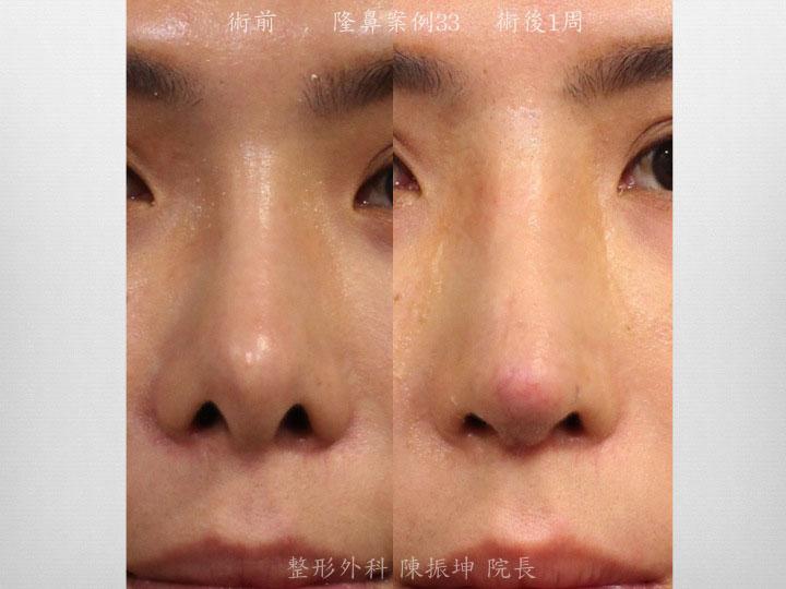 客人傳統隆鼻後出現攣縮、鼻孔變形、鼻頭皮膚幾近穿出;改用全自然隆鼻後,鼻子呈現自然結果
