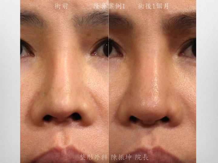 客人多次手術後出現攣縮、鼻小柱後縮、鼻梁變窄;全自然隆鼻後,改善鼻梁自然度、也改善了鼻小柱美感及鼻孔對稱度