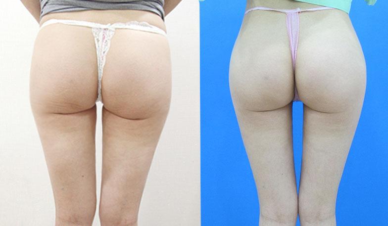 手術效果因人而異,實際狀況須由專科醫師評估,此照片僅供醫療衛教使用