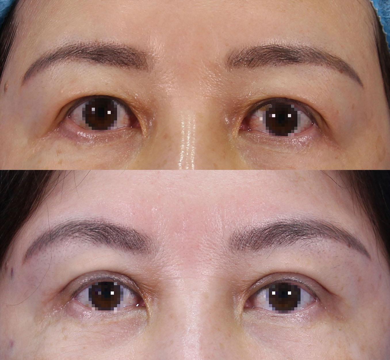 #客人同時接受割雙眼皮和內視鏡提眉來改善眼尾下垂以及泡泡眼問題