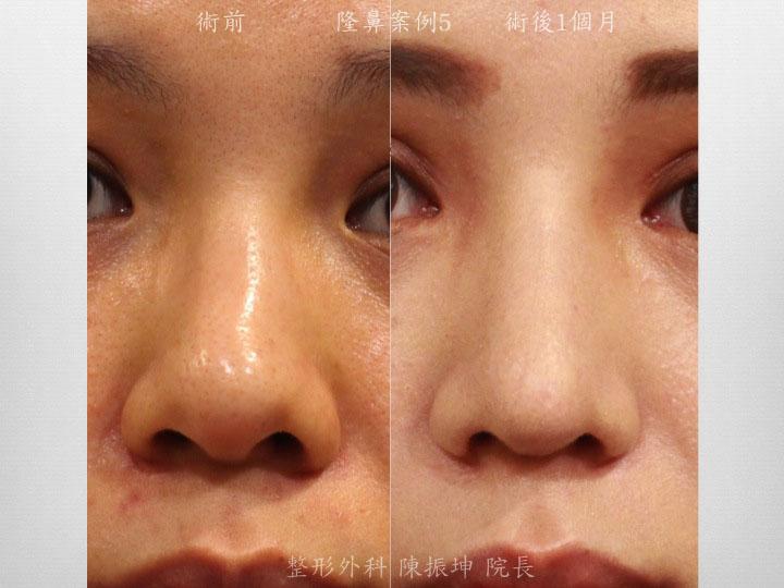 利用半肋骨隆鼻,改善鼻頭精緻杜,同時也矯正鼻中隔彎曲
