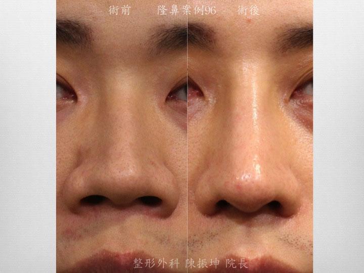 利用半肋骨隆鼻,達到延長、立體鼻頭,縮小鼻翼的結果