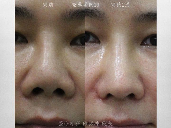 半肋骨隆鼻,可以安全地矯正前次隆鼻留下的攣縮朝天問題
