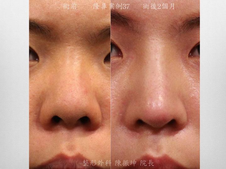 半肋骨隆鼻,鼻頭延長、精緻