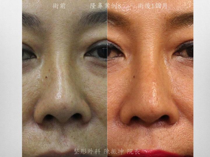 利用半肋骨隆鼻,同時可以矯正鼻中隔彎曲的問題