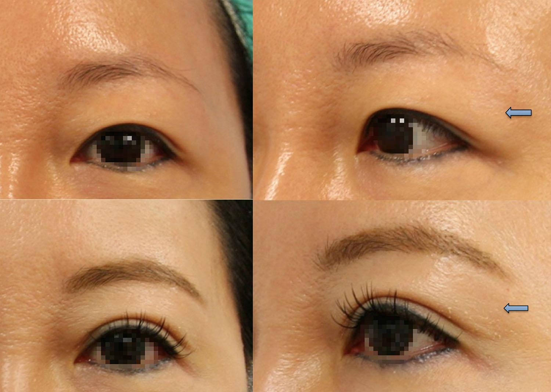 #雙眼皮手術+去除眼窩上脂肪矯正泡泡眼