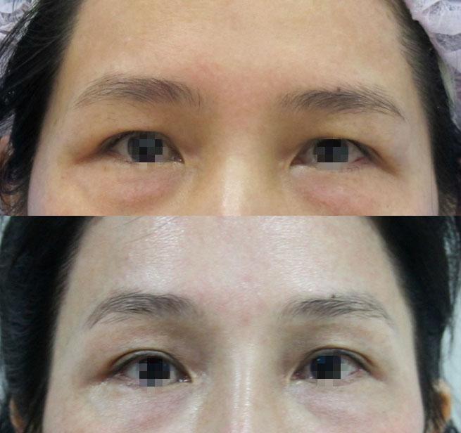 #眉尾下垂造成泡泡眼的問題,客人不想改變雙眼皮,可以利用內視鏡提眉很自然地矯正泡泡眼尾的問題