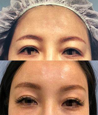#內視鏡提眉可以自然地矯正眼尾和眼頭泡泡的問題,而且術後恢復期很短(上面為客人單純接受內視鏡提眉,手術後第五天)