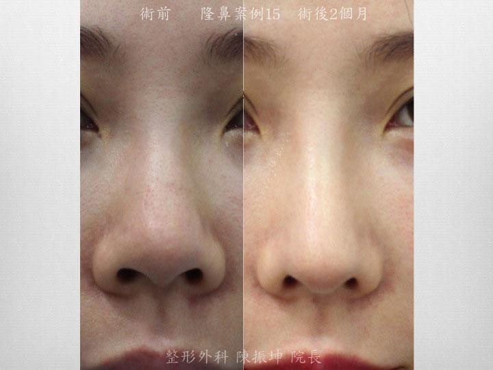 利用三段式結構式隆鼻,達到鼻頭延長、鼻珠呈現的效果