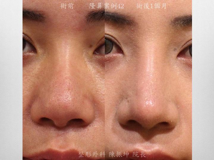 利用三段式結構式隆鼻,縮小鼻頭軟骨,拉高鼻頭立體度和精緻感