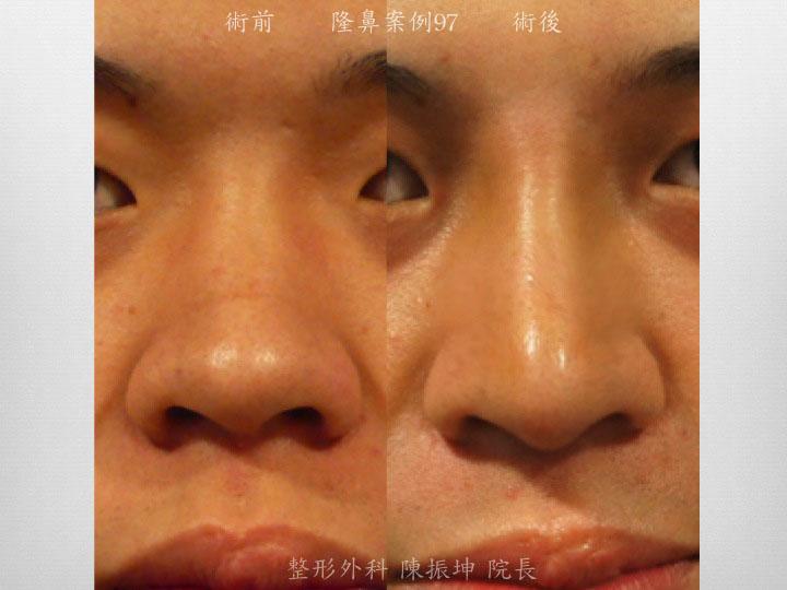 利用三段式隆鼻,從鼻中隔基底延長鼻子長度,達到穩定的效果