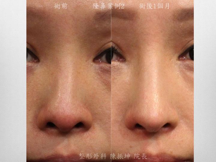 利用三段結構式隆鼻,矯正鼻梁 /中隔彎曲問題,同時提高鼻頭精緻感