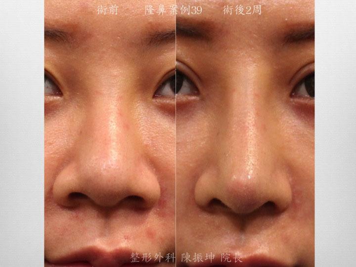 利用三段結構式隆鼻,同時改善鼻梁、鼻中隔、鼻頭,達到長期穩定的結果