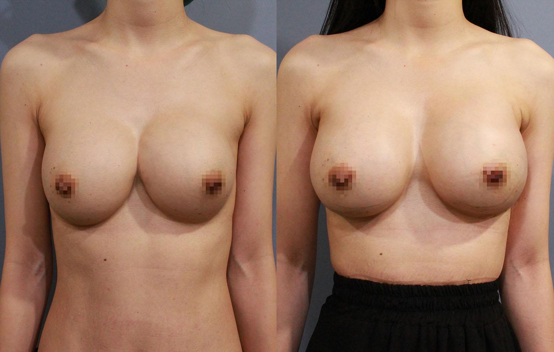 左圖:客人之前接受傳統隆乳術後造成兩邊胸部相連的不自然結果。右圖:經過全程內視鏡,並使用魔滴假體隆乳的方式來矯正融合胸的問題,並得到很好的效果