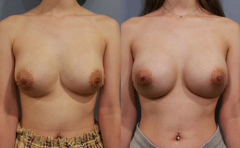 左圖:客人之前接受傳統隆乳術後造成兩邊胸部不正常的靠近,以及右胸雙層奶的問題。右圖:經過全程內視鏡,並使用魔滴假體隆乳的方式來矯正融合胸的難題,並得到很好的效果