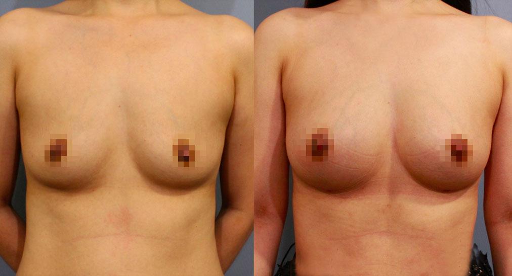 自體脂肪豐胸。左:術前;右:術後