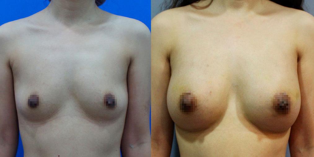 前面同一個客人,後來再接受自體脂肪修飾淺層胸部,改善自然外形以及胸部觸感