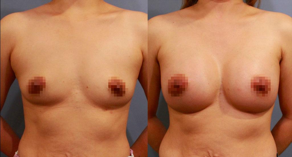 複合式隆乳:魔滴隆乳+自體脂肪填補:美感+觸感 一次完成