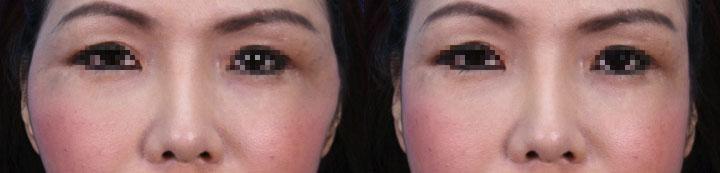 同樣案例a,左圖:單獨隆鼻;右圖:隆鼻加上顴骨內推