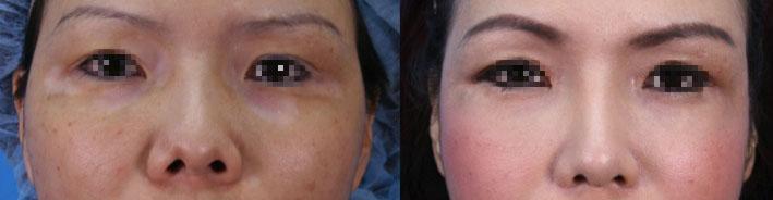 案例a,真實臨床上,同時接受隆鼻加上顴骨內推,左圖:術前;右圖:術後