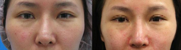 案例b,在電腦模擬下,單純接受結構式隆鼻術後