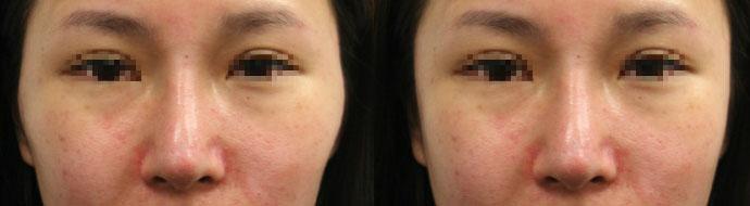 同樣案例b,左圖:單獨隆鼻;右圖:隆鼻加上顴骨內推