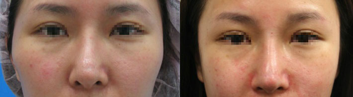 案例b,真實臨床上,同時接受隆鼻加上顴骨內推,左圖:術前;右圖:術後