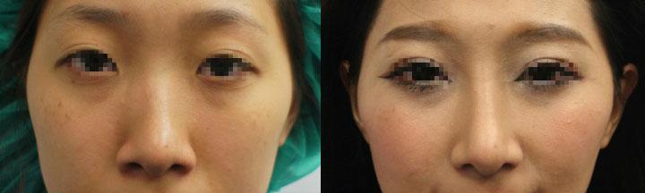 案例c,在電腦模擬下,單純接受結構式隆鼻術後