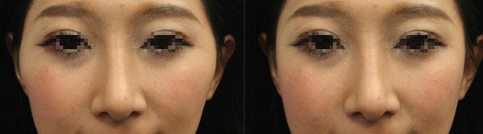 同樣案例c,左圖:單獨隆鼻;右圖:隆鼻加上顴骨內推