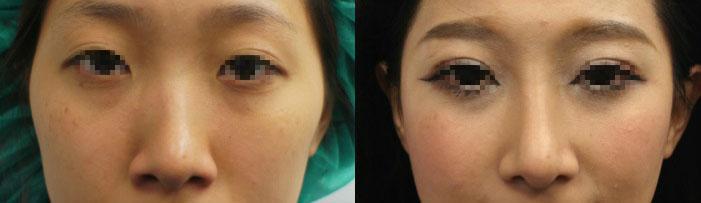 案例c,真實臨床上,同時接受隆鼻加上顴骨內推,左圖:術前;右圖:術後