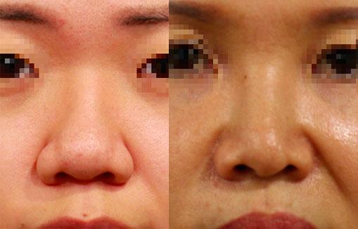 手術前的鼻子,連同鼻基底凹陷,更加重鼻頭鼻翼後縮的問題