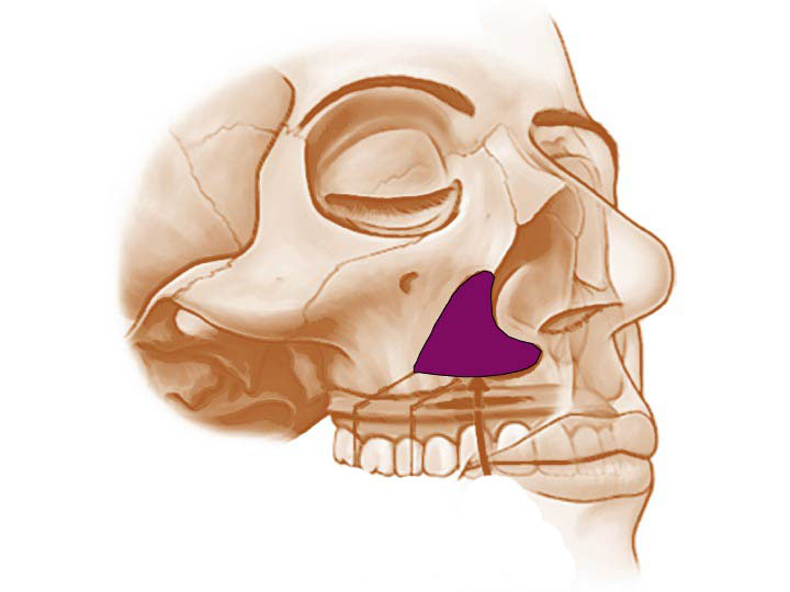 鼻基底手術就是矯正鼻翼側邊,解剖學上凹陷後縮的骨骼