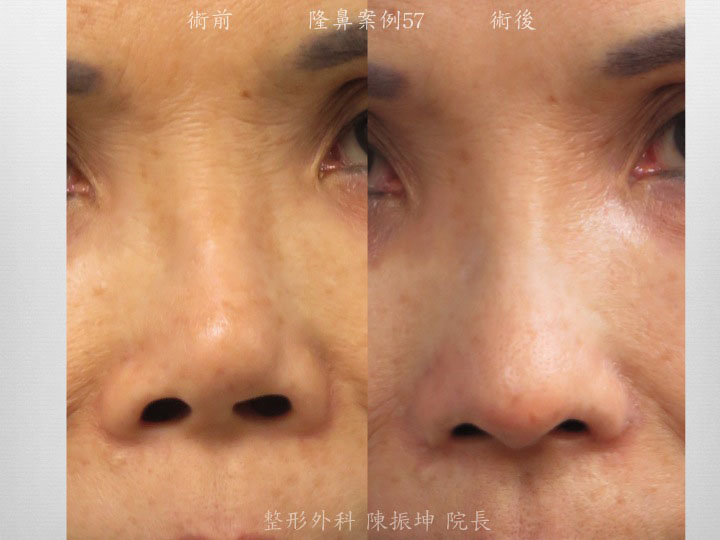 前次傳統隆鼻矽膠假體層次太淺,鼻梁歪斜,改用結構式隆鼻矯正