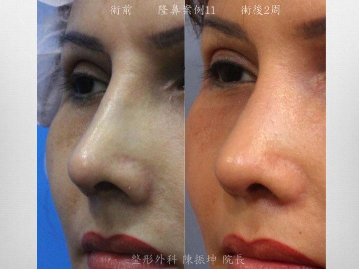 前次隆鼻後,鼻頭山根太高不自然而來重修隆鼻