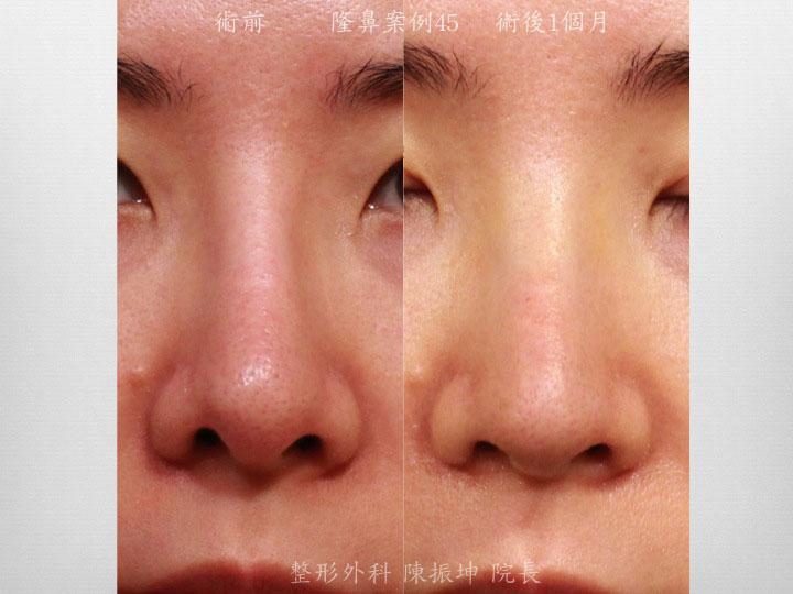 前次山根假體攣縮太細,鼻孔上縮不對稱,藉由結構式,全自然隆鼻來改善