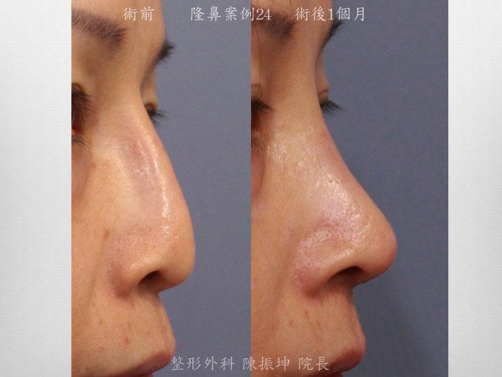 前次手術後鼻頭塌陷,利用全自然隆鼻方始來矯正