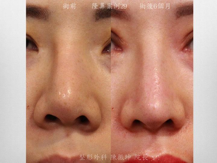 前次手術後,鼻頭歪斜,鼻孔不對稱,利用半肋骨隆鼻來矯正