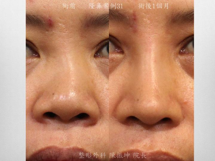 鼻中隔彎曲影響鼻子基本功能,重修隆鼻時後,可以利用結構式隆鼻概念來矯正