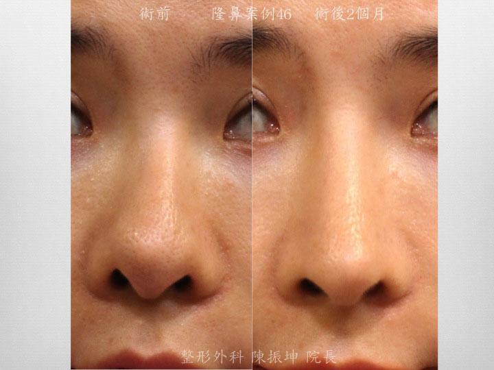 鼻中隔彎曲造成前次手術後連帶鼻頭的偏斜,利用結構式隆鼻方式來改善