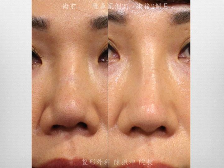 前次手術留下的鼻中隔彎曲,造成的鼻孔不對稱,利用結構式隆鼻的手術概念來矯正