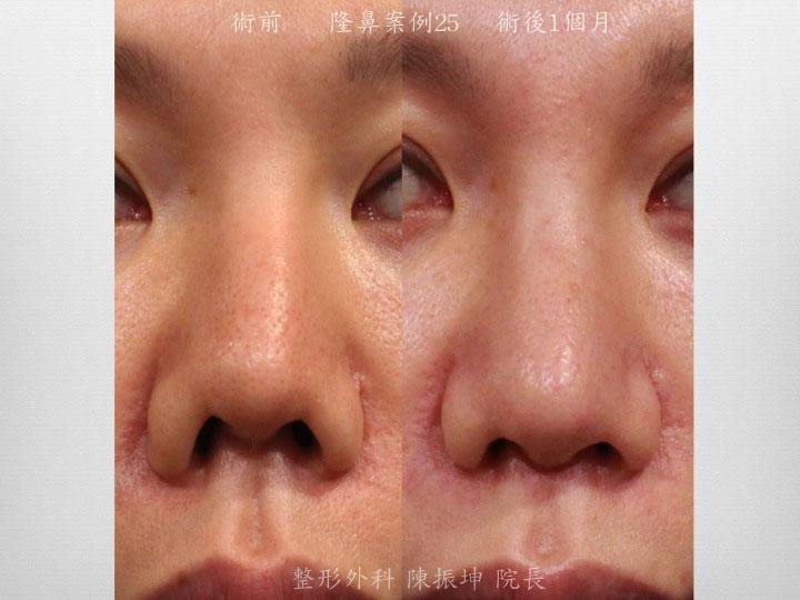 前次手術造成的感染攣縮以及鼻翼不協調的問題,利用全自然隆鼻方式來解決
