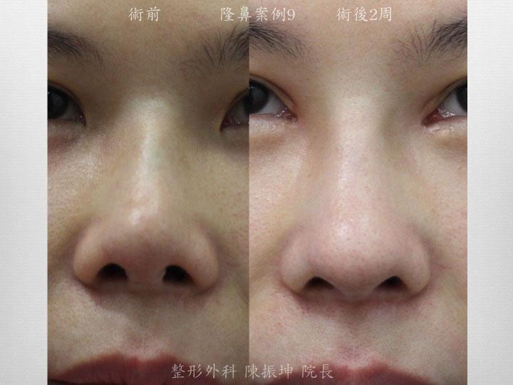 前次手術術後造成感染攣縮的問題,利用半肋骨隆鼻方式來解決