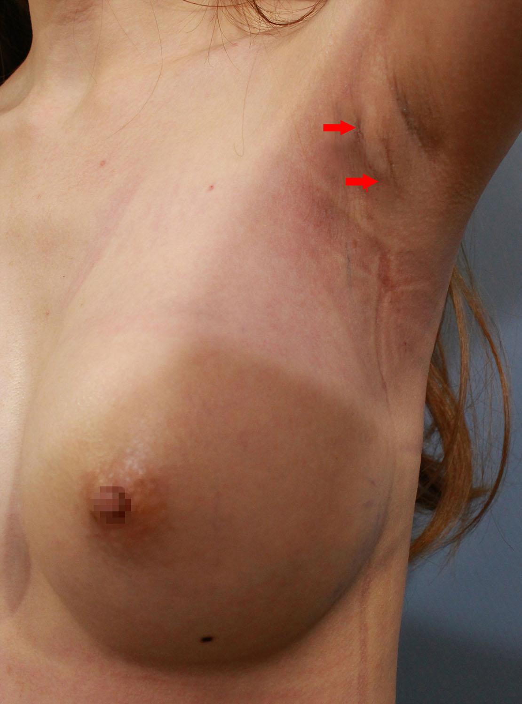 經腋下Motiva魔滴隆乳,手術後3周,傷口可以完全縮短在皺摺和手臂姿勢覆蓋處